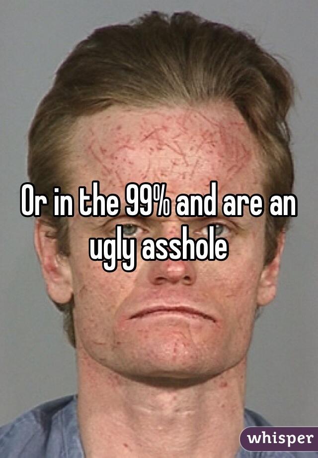 Ugly ass hole