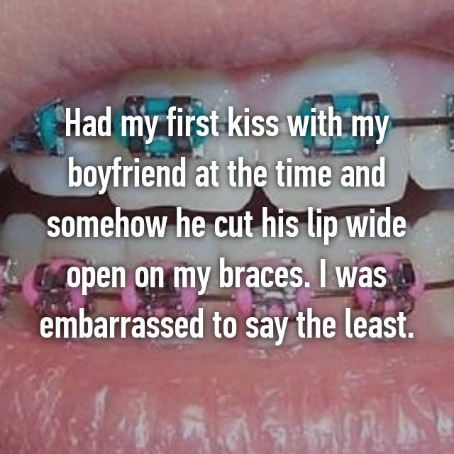 Had my first kiss with my boyfriend at the time and somehow he cut his lip wide open on my braces. I was embarrassed to say the least.