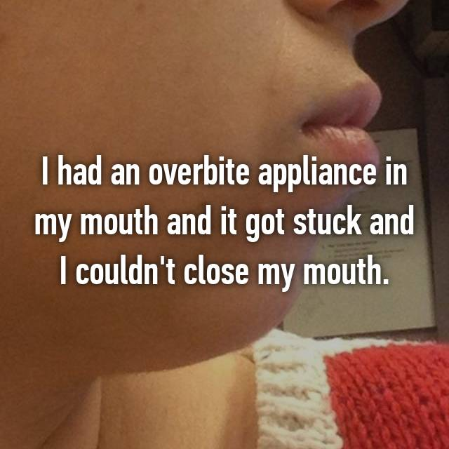 I had an overbite appliance in my mouth and it got stuck and I couldn't close my mouth.