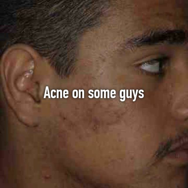Acne on some guys 😍