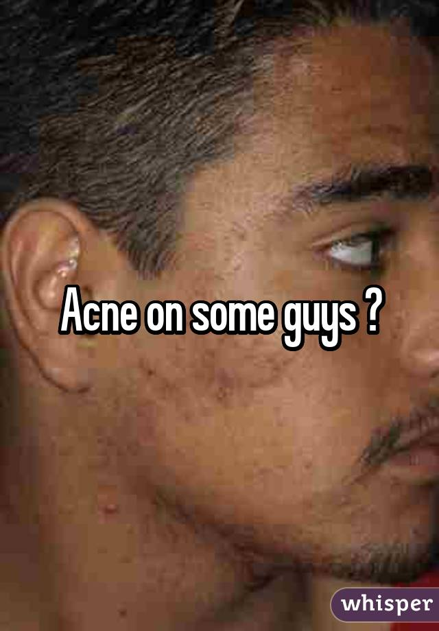 Acne on some guys ��