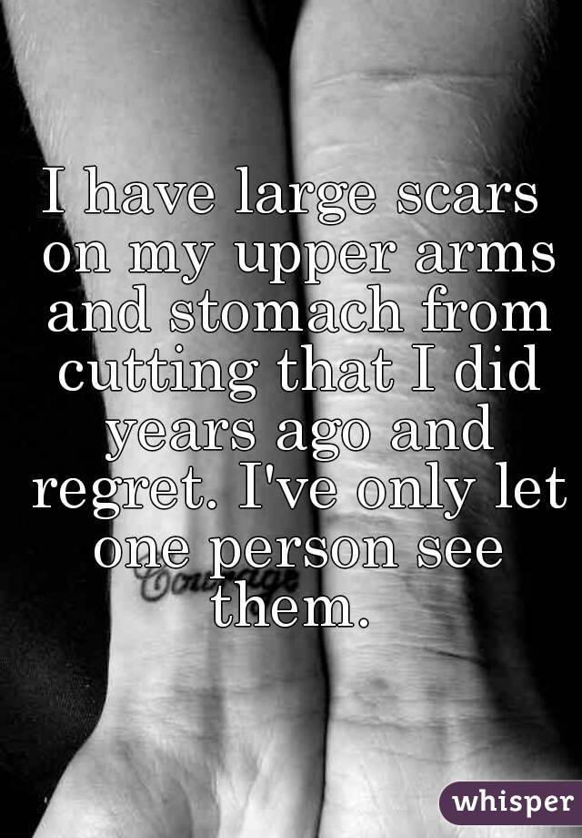 i have large scars on my upper arms and stomach from