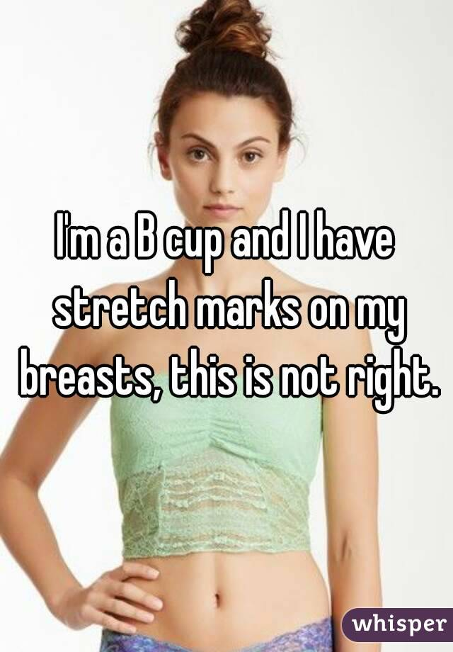 I'm a B cup and I have stretch marks on my breasts, this is not right.