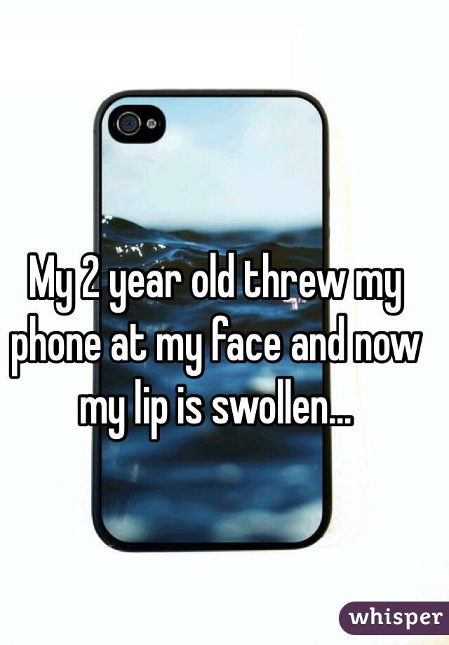 My 2 year old threw my phone at my face and now my lip is swollen...