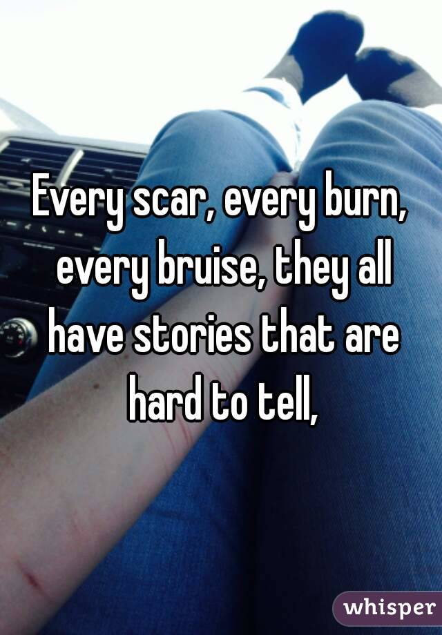 Every scar, every burn, every bruise, they all have stories that are hard to tell,