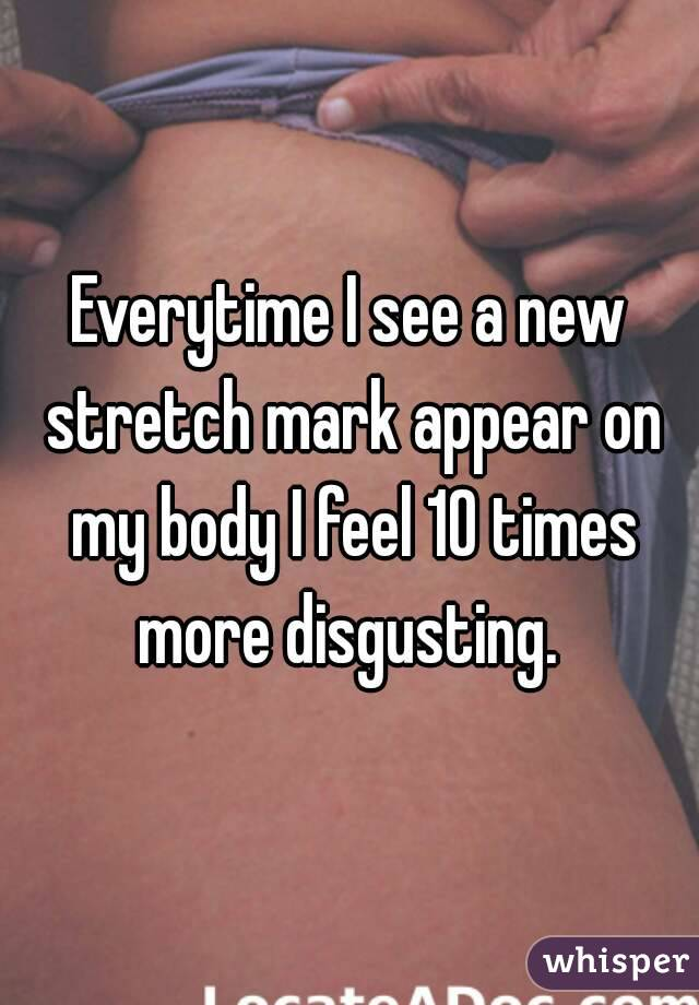 Everytime I see a new stretch mark appear on my body I feel 10 times more disgusting.