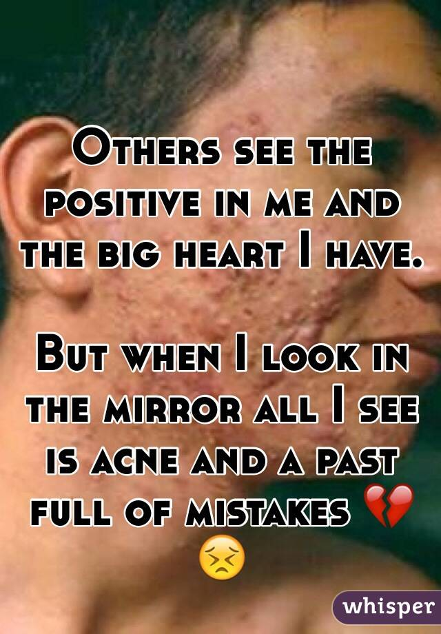 Others see the positive in me and the big heart I have.  But when I look in the mirror all I see is acne and a past full of mistakes 💔😣