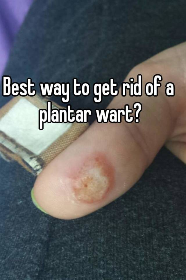 how to get rid of a plantars wart