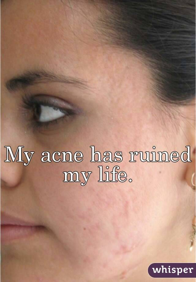 My acne has ruined my life.