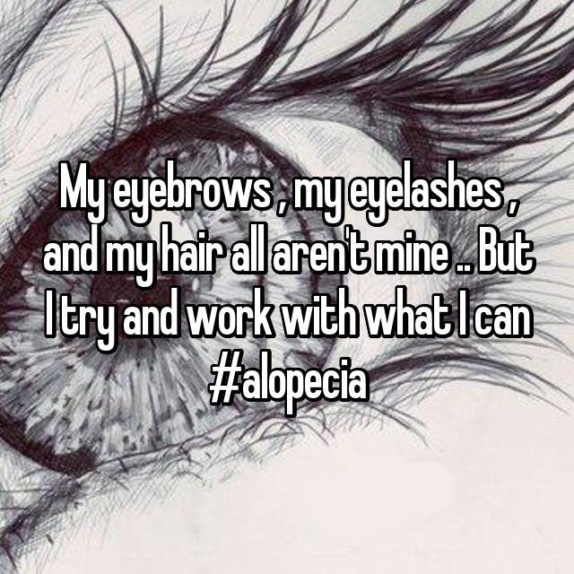 My eyebrows , my eyelashes , and my hair all aren't mine .. But I try and work with what I can #alopecia