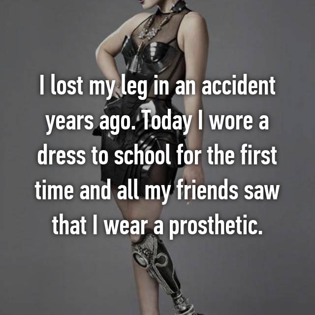 I lost my leg in an accident years ago. Today I wore a dress to school for the first time and all my friends saw that I wear a prosthetic.