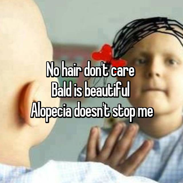 No hair don't care  Bald is beautiful  Alopecia doesn't stop me
