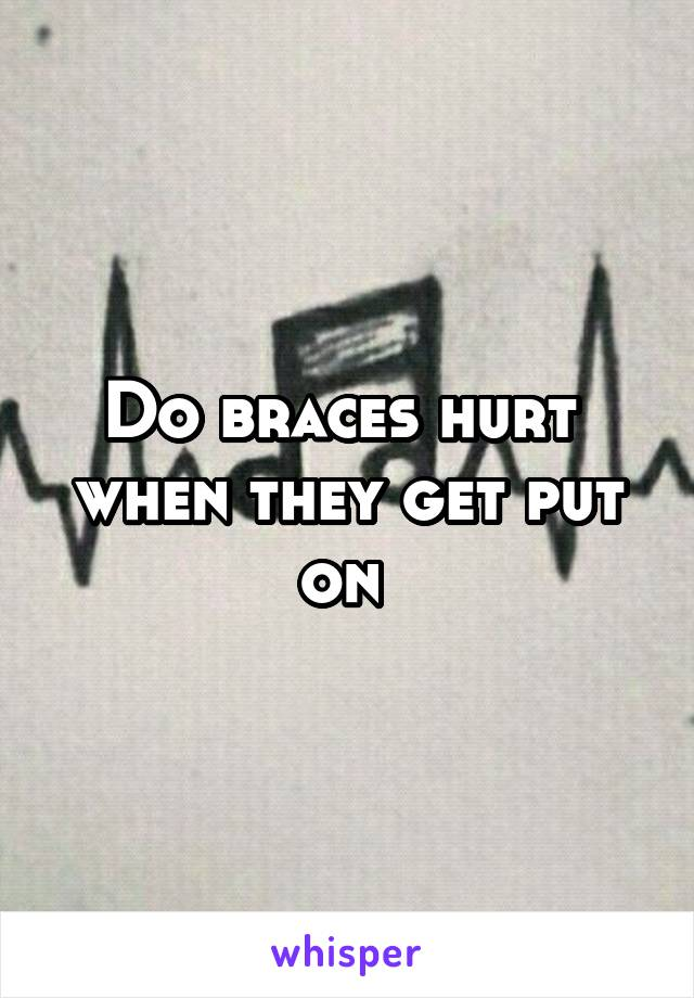 Do braces hurt  when they get put on