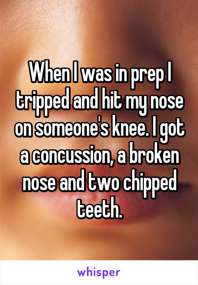When I was in prep I tripped and hit my nose on someone's knee. I got a concussion, a broken nose and two chipped teeth.