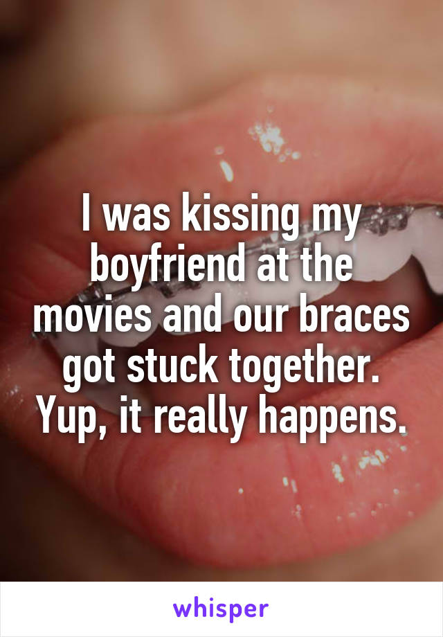 Braces Quotes Adorable 17 Horror Stories About The Embarrassment Of Having Braces  Smosh