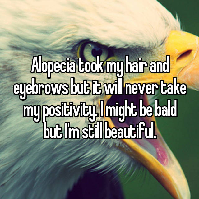 Alopecia took my hair and eyebrows but it will never take my positivity. I might be bald but I'm still beautiful.
