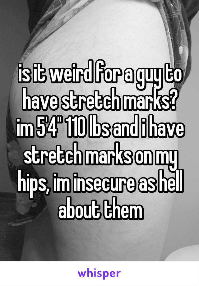 """is it weird for a guy to have stretch marks? im 5'4"""" 110 lbs and i have stretch marks on my hips, im insecure as hell about them"""