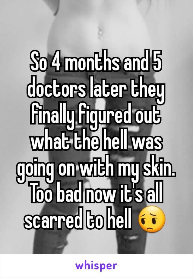 So 4 months and 5 doctors later they finally figured out what the hell was going on with my skin. Too bad now it's all scarred to hell 😔
