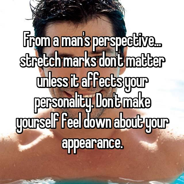 From a man's perspective... stretch marks don't matter unless it affects your personality. Don't make yourself feel down about your appearance.