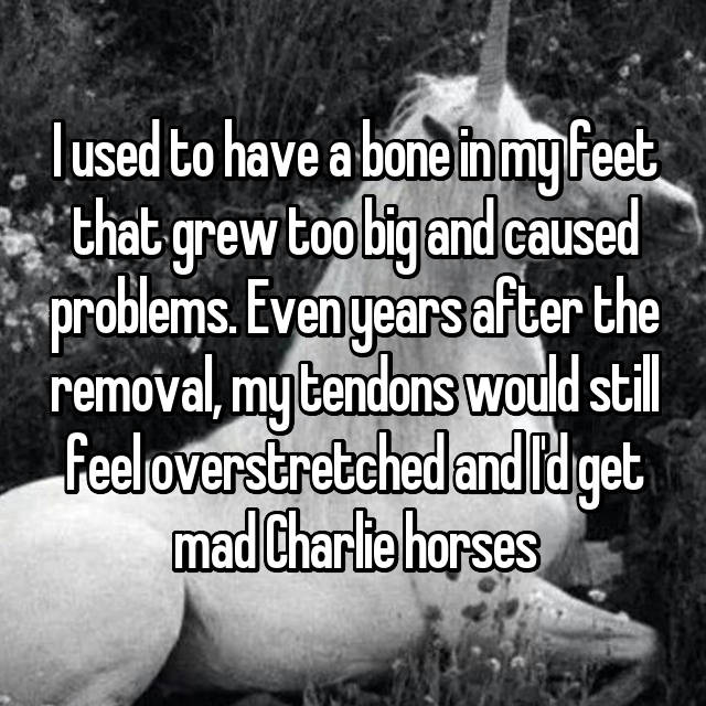 I used to have a bone in my feet that grew too big and caused problems. Even years after the removal, my tendons would still feel overstretched and I'd get mad Charlie horses