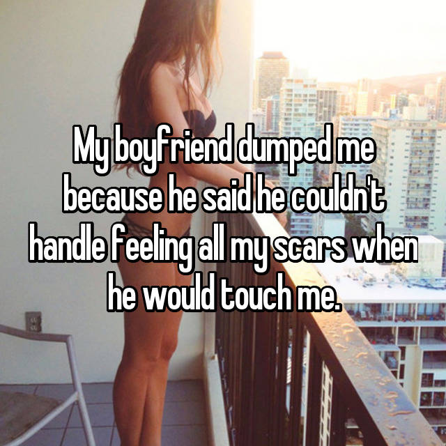 My boyfriend dumped me because he said he couldn't handle feeling all my scars when he would touch me.